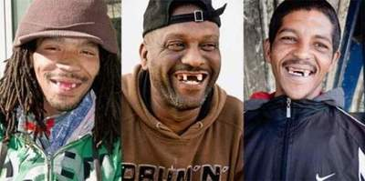 South Africans currently front teeth removed, following the current fashion